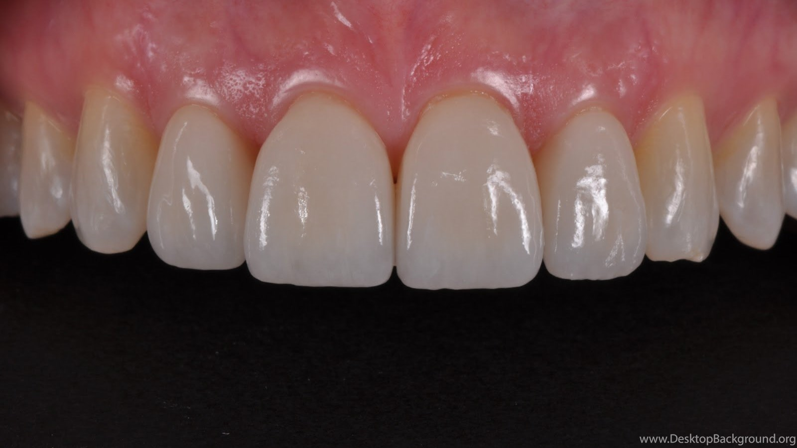 Dental Photography Pearls For Better Images Instantly An Easy Desktop Background