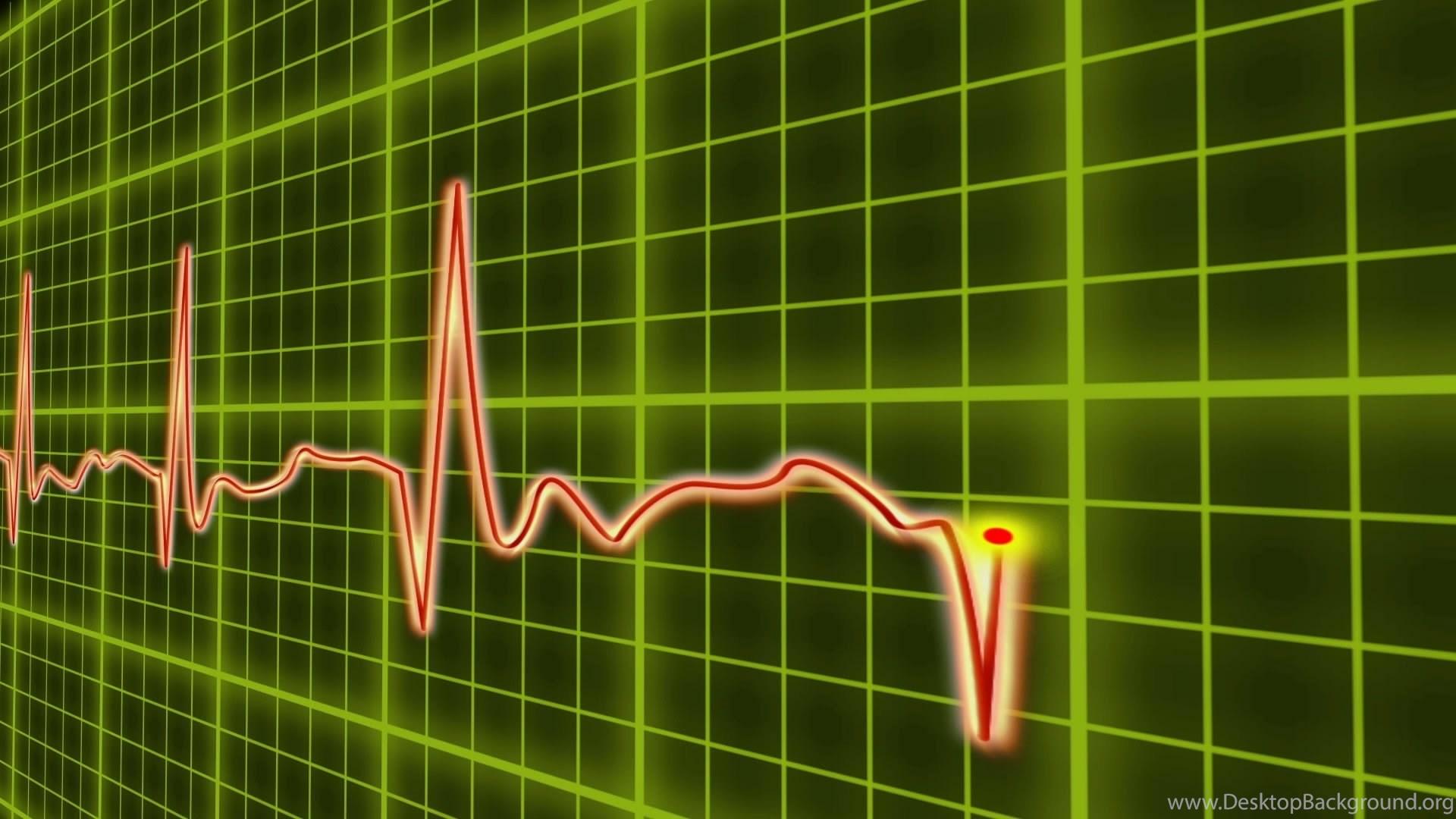 592000 ekg cardio heart beat normal and zero pulse with audio